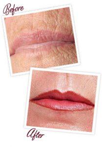 lip_lines_photo2